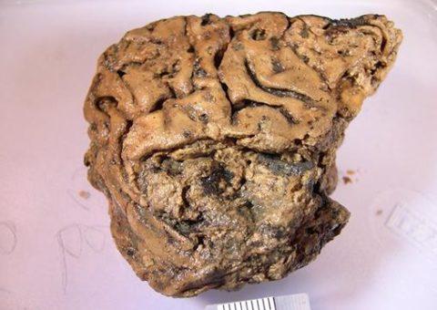 El cerebro que se conservó 2600 años en el barro